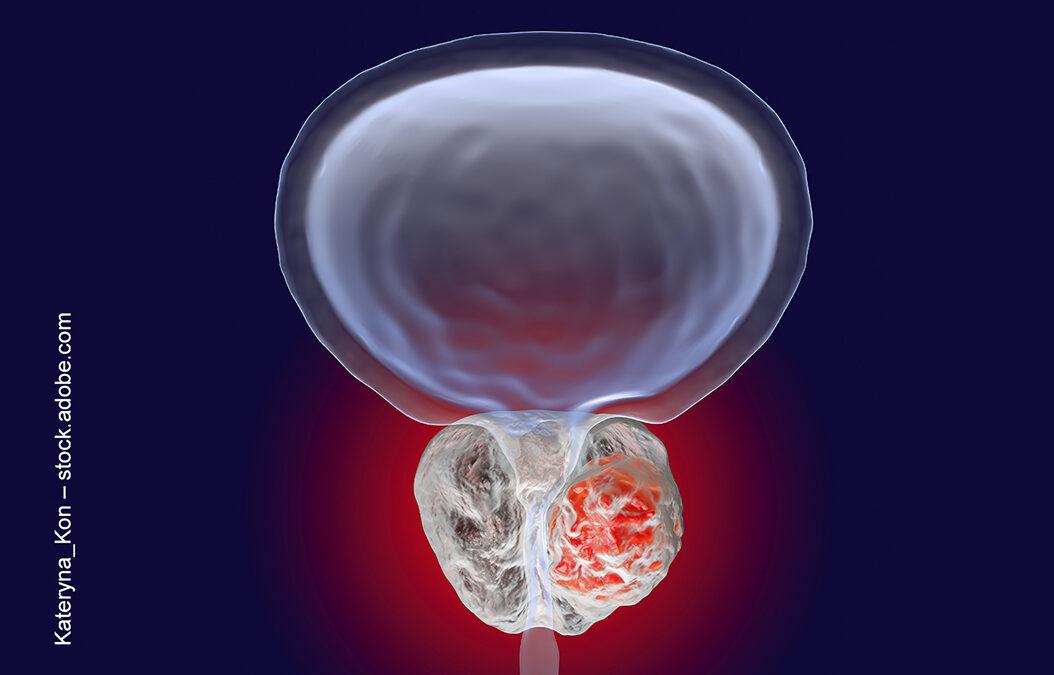 Hormontherapie beim kastrationsresistenten Prostatakrebs