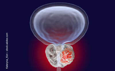 Olaparib für das metastasierte, kastrationsresistente Prostatakarzinom